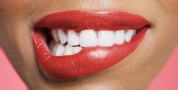 Bleaching: Das musst du übers Zähne bleichen wissen