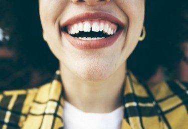 Zähne aufhellen zu Hause
