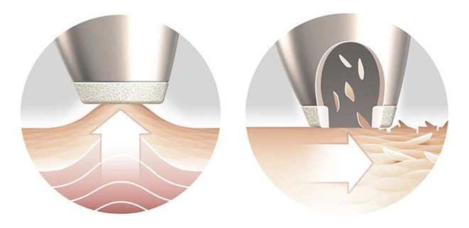 So funktioniert Mikrodermabrasion für Zuhause.