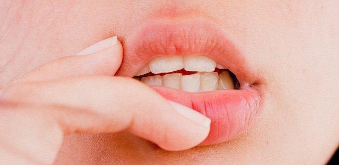 Trockene Lippen adieu: Das hilft wirklich