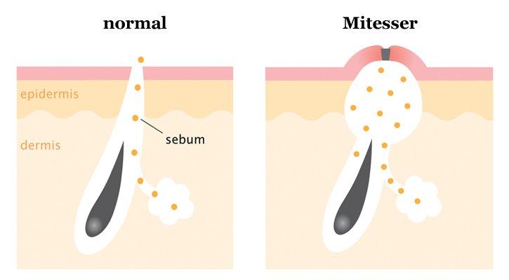 Mitesser entstehen wenn die Poren verstopft oder verhornt sind.