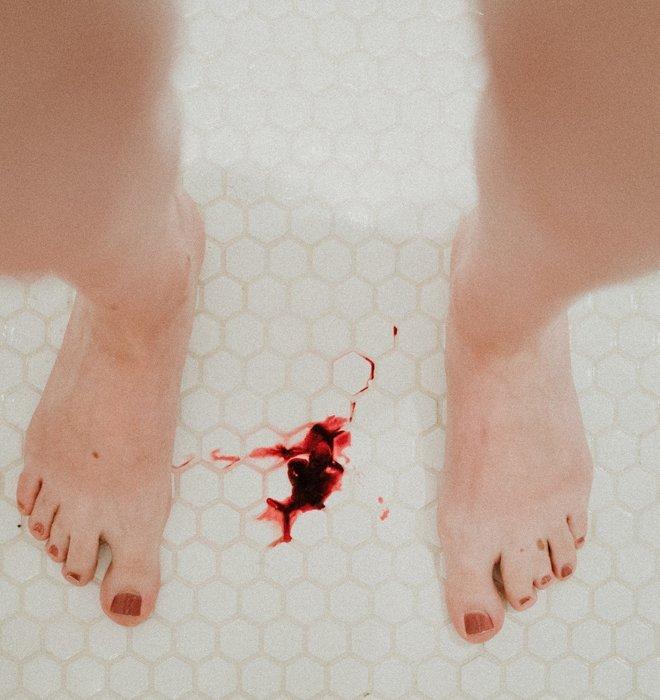 Frau in Dusche verliert Blut