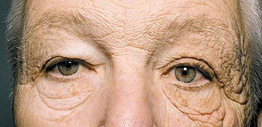 Uniliterale Dermatoheliosis: Einseitig sonnengeschädigte Haut