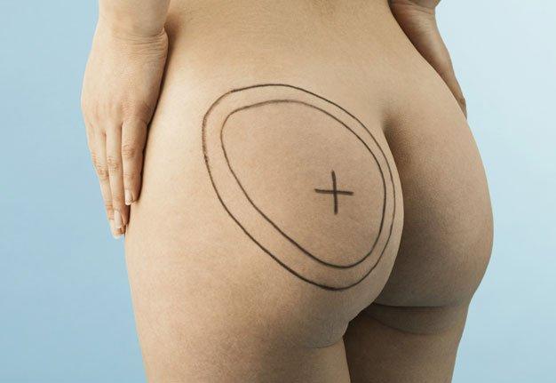 Liposuktion: Bitte einmal alles absaugen, Frau Doktor!