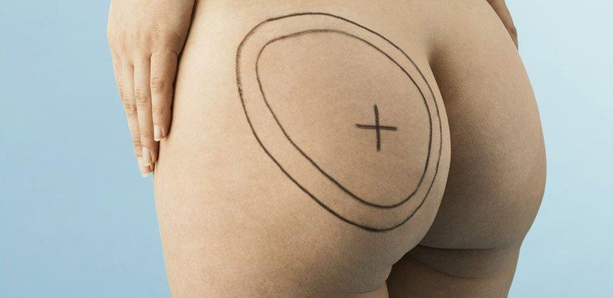 Wann eine Liposuktion sinnvoll ist und mit welchen Kosten und Nebenwirkungen man rechnen muss.